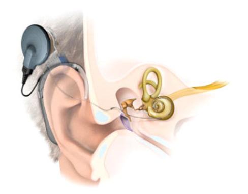新生儿听力筛查.png